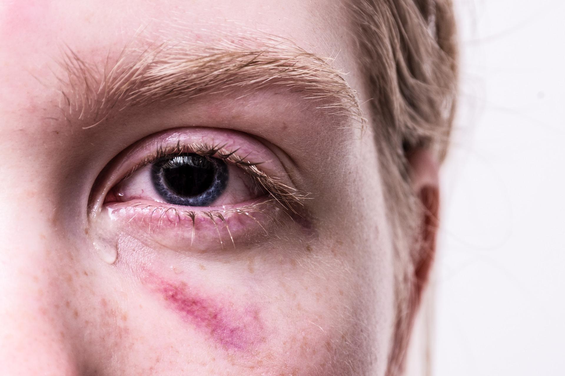 Huiselijk geweld melden via codewoord 'masker 19'